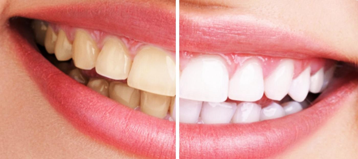 10 dudas frecuentes sobre el blanqueamiento dental